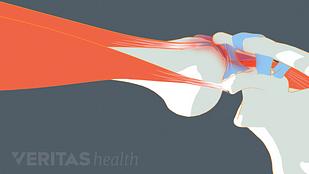 Shoulder impingement illustration
