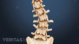 Posterior view of curvature in the lower spine from degenerative scoliosis.