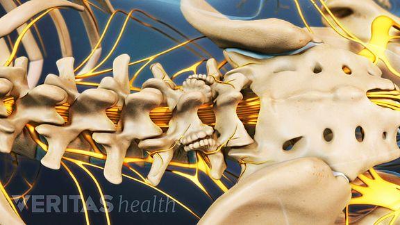 Animated video still of lumbar osteophytes developing as a result of lumbar degenerative disc disease