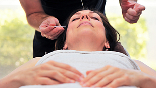 Woman lying down and having acupuncture needles placed in her head.