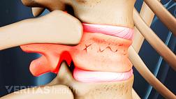Vertebra with a compression fracture in the vertebral body.