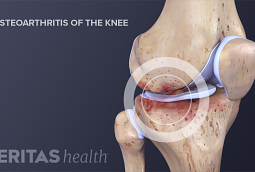 Illustration of Knee Osteoarthritis Degenerated Cartilage
