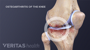 Medical illustration of osteoarthritic changes in the knee joint