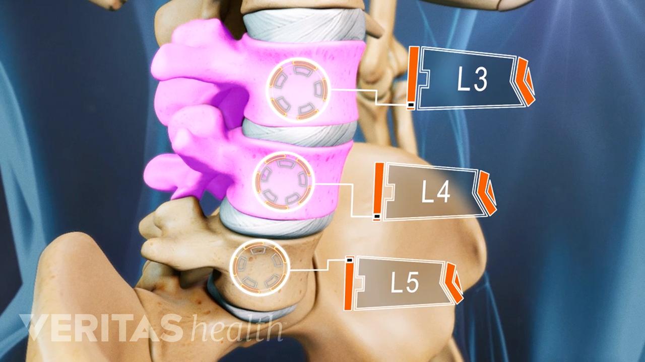 Lumbar degenerated disc in L3 and L4.