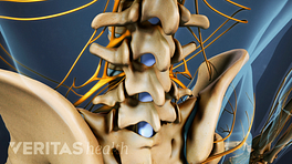 Posterior view of the lumbar spine for location of fusion.