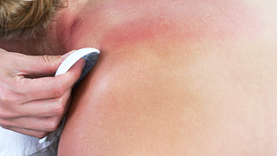 Image of the red splotches on a woman's neck and upper back from gua sha treatment