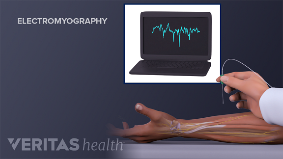 Illustration of electromyography being performed on a person's arm