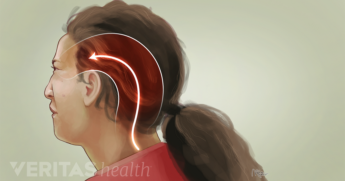 Occipital Neuralgia: What It Is and How to Treat It