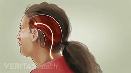 Profile view of occipital neuralgia headache throughout the skull.
