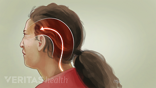Occipital neuralgia illustration