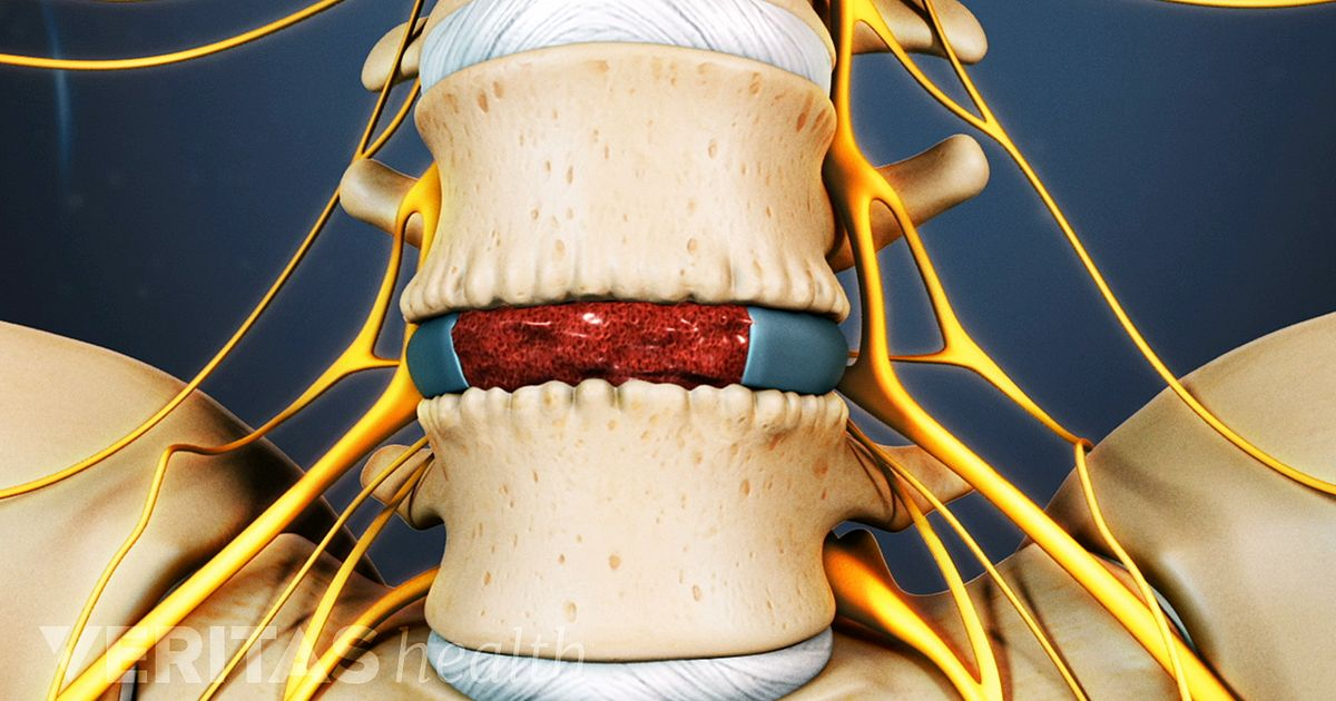 Anterior Lumbar Interbody Fusion Spinal Implants And Bone