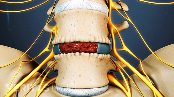 Medical illustration of a bone graft and cage in the spine