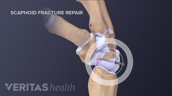 Scaphoid fracture repair