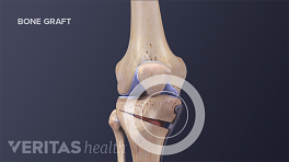Medical illustration showing parts of the bone that are removed and bone grafts added during a tibial osteotomy.