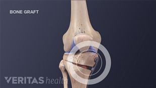 Open Osteotomy