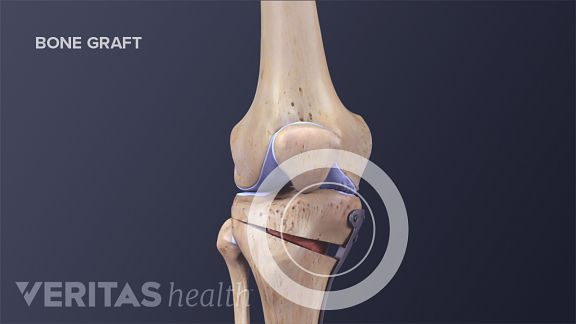 Types of Knee Surgery for Arthritis Treatment