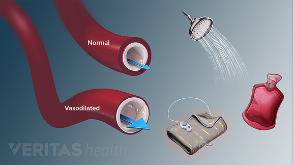 Medical illustration showing normal and vasilodated blood vessels as a response to different forms of heat therapy