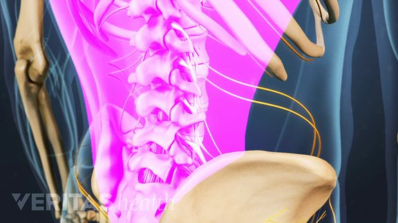 The large muscles of the low back can become strained, which is a common cause of lower back pain.