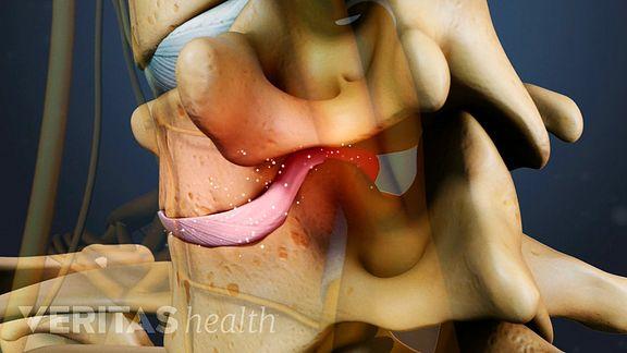 Cervical DDD