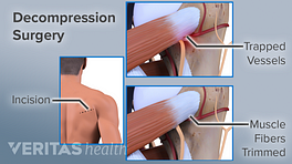 Showing the incision point of decompression surgery showing trapped vessels and muscle fibers trimmed.
