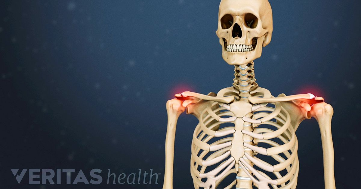 Acromioclavicular (AC) Joint Osteoarthritis Video