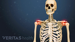 Illustrated skeleton with a red glow in the shoulder joint indicating pain