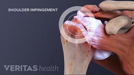 How shoulder impingement affects shoulder movement