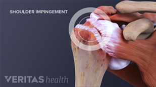 Image showing how shoulder impingement affects shoulder movement