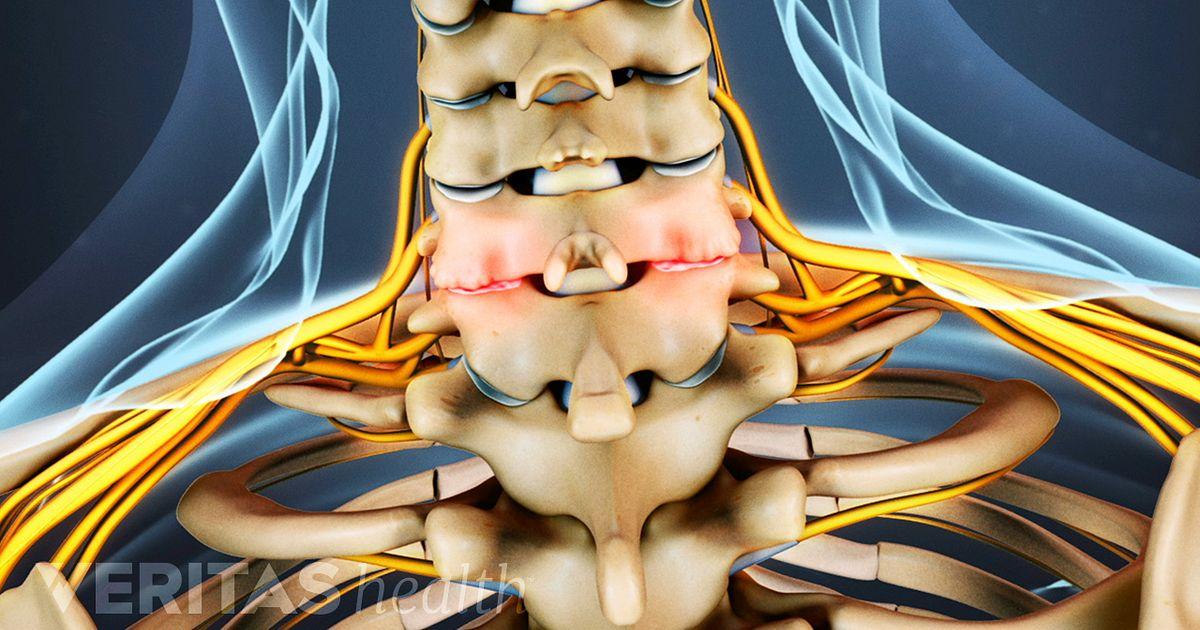 Cervical Osteoarthritis Neck Arthritis
