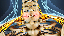 Posterior view of cervical spine showing facet joint swelling from osteoarthritis.