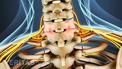 Neck Arthritis Cervical Osteoarthritis