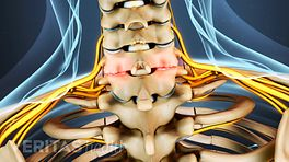 Cervical Facet Osteoarthritis Video