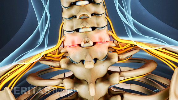 Posterior view of the cervical spine showing osteoarthritis.