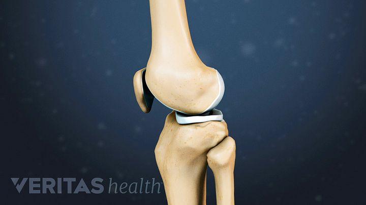 Knee Cartilage Repair, Regeneration, and Replacement