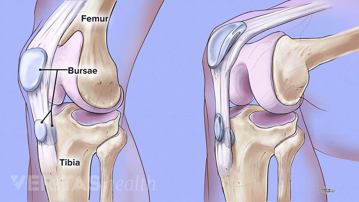 a bursitis arthritis kezelésére)