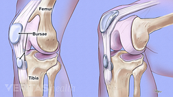 Knee bursitis showing the femur, bursae, and tibia.