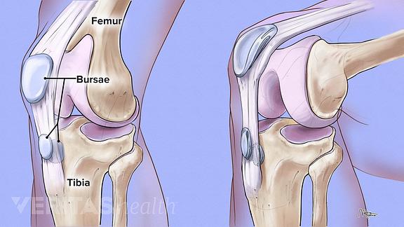 illustration of bursa in the knee