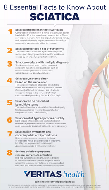 8 Essential Facts to Know About Sciatica