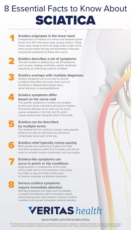 8 Essential Facts to know about Sciatica infographic