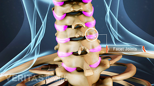 Animated medical still showing a cervical facet joint