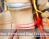 Anterior view of a lumbar herniated disc.