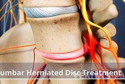 Lumbar Herniated Disc Treatment Video