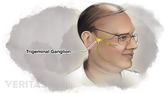 Illustration of the location of the trigeminal ganglion