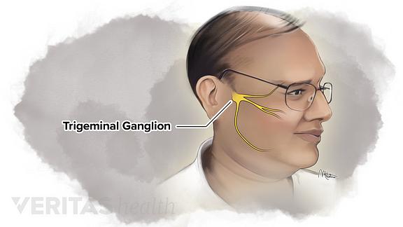 Location of the trigeminal ganglion