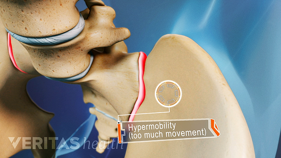 Animated video still of hypermobility in the sacroiliac joint