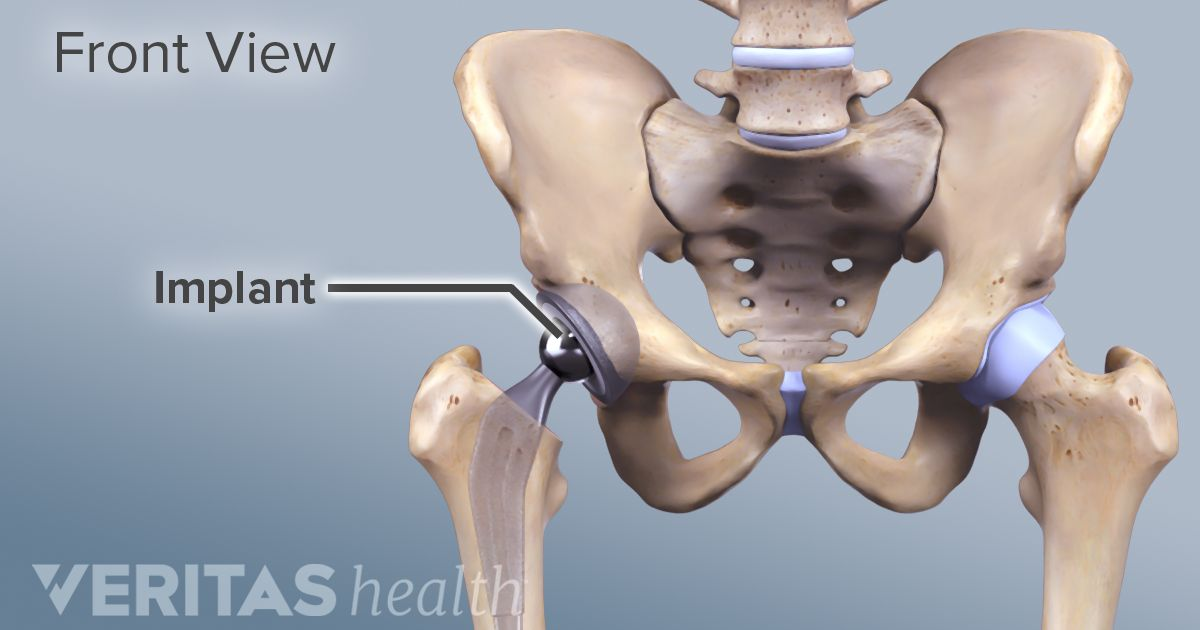 Indications and Eligibility for Total Hip Replacement Surgery
