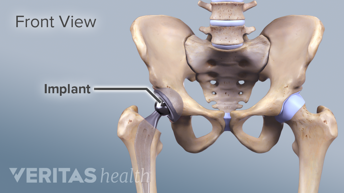 17++ Can you have a hip replacement if you have osteoporosis ideas