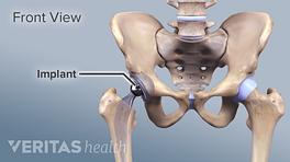 Medical Illustration of a hip implant