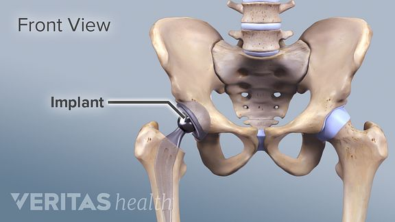 Is Minimally Invasive Hip Surgery Right for You?
