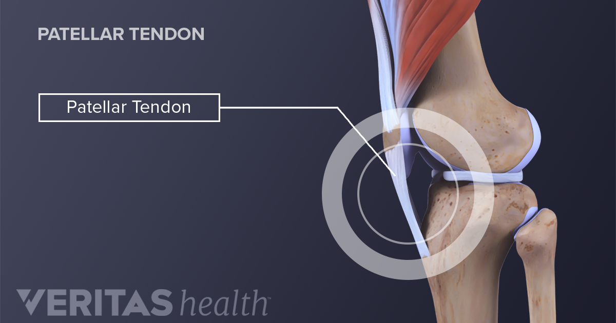 Symptoms Of An Acute Patellar Injury